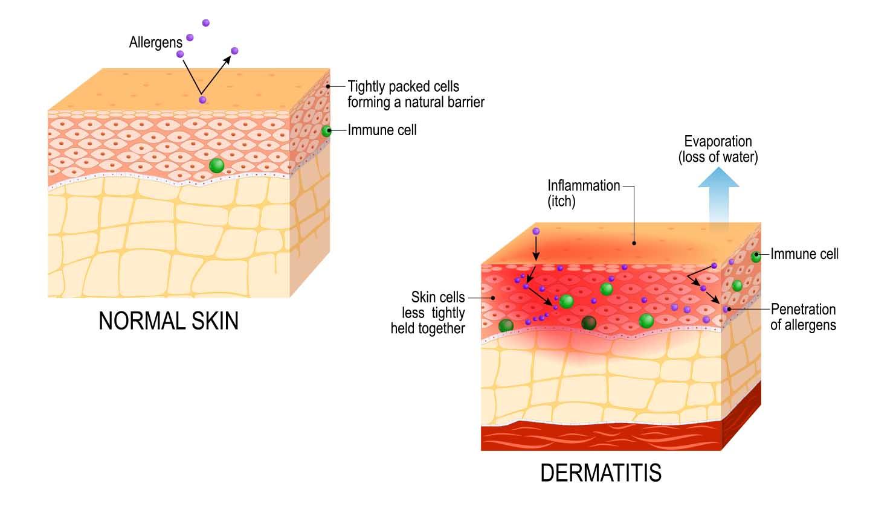 Pele normal e pele atópica