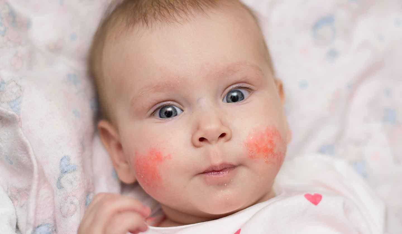 Cuidados com a pele do bebé